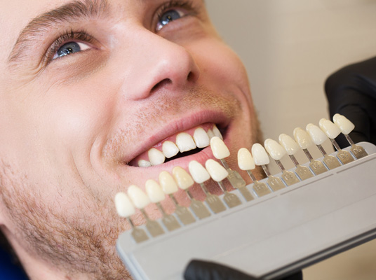 veneers at penerley road dental practice